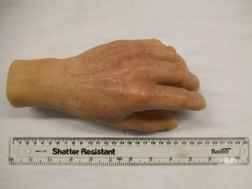 Prosthetic glove
